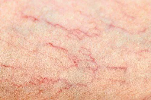 Varizes nas Pernas: Veja como Tratar, Sintomas e Prevenção