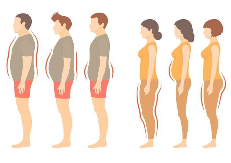 Cirurgia Bariátrica: Conheça os Riscos, Tipos e Preço