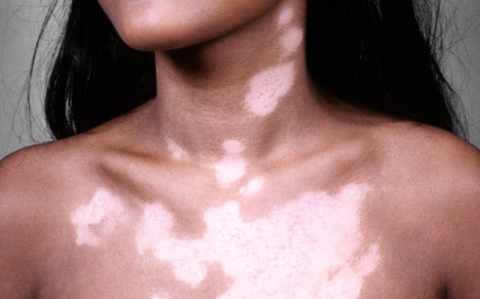Manchas Brancas na Pele