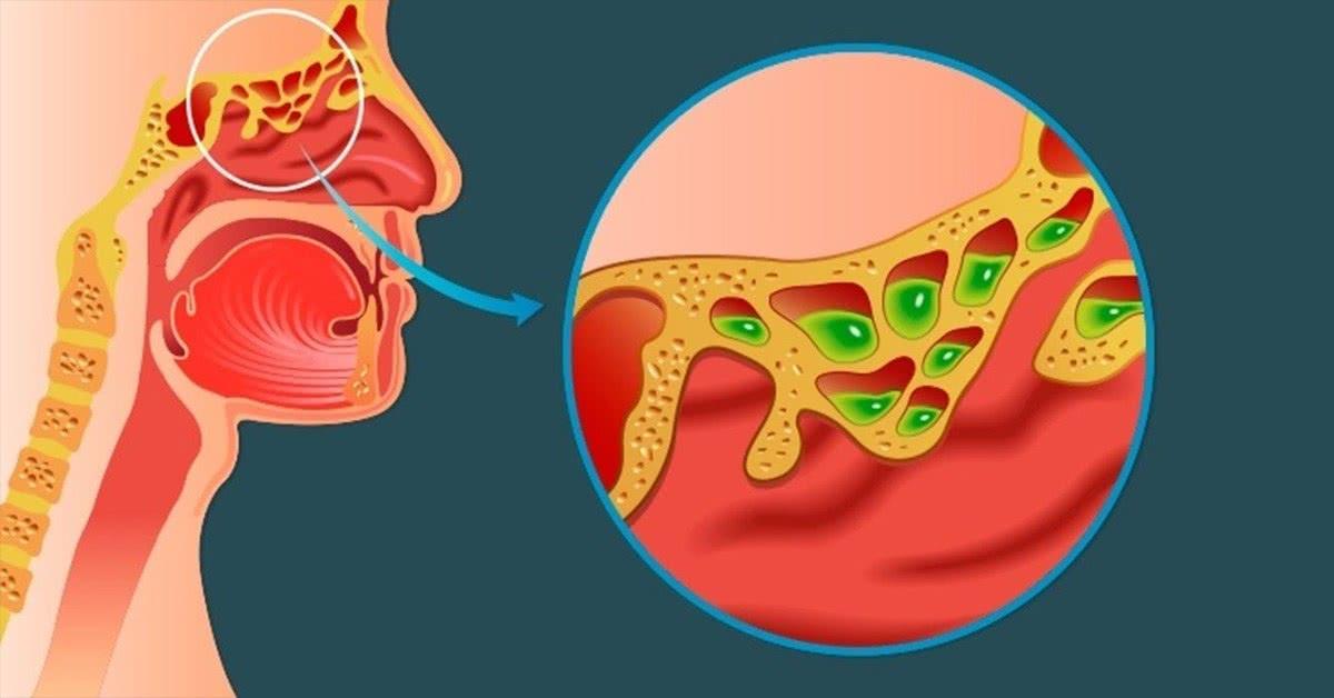 Remédios Para Rinite Alérgica Conheça Os Melhores